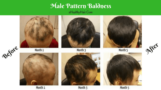 Hair Loss And Baldness Thinning Hair In Men And Women Awesome Male Pattern Baldness Causes