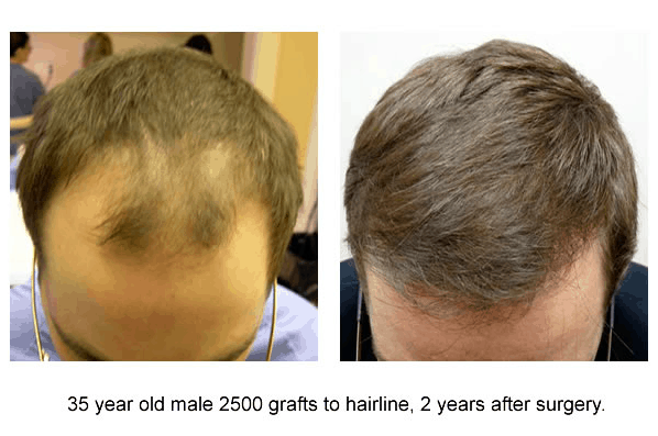 Top 10 questions you must ask before undergoing hair transplant pattern hair loss an extensive restoration may be needed this may take up to eight thousand grafts in order to be able to get a density of forty five urmus Gallery
